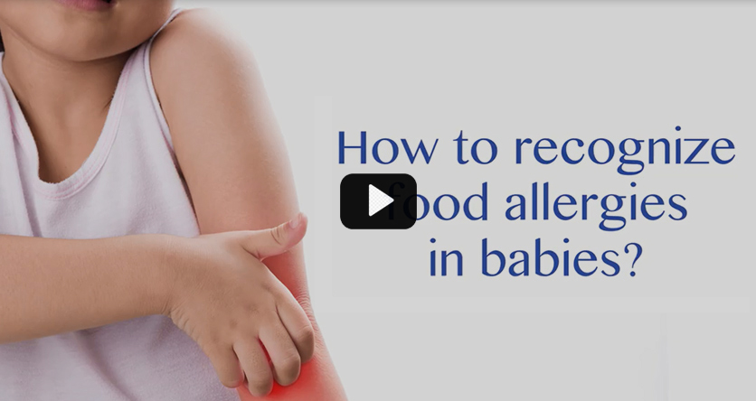 How to recognize food allergies in babies?